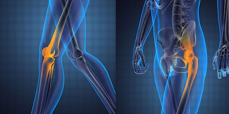 Joint Replacement Options tickets