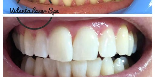 Professional Teeth Whitening Certification