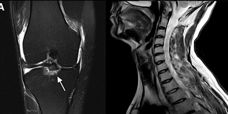 MRI Basics for Referrers (Spine and Knee) tickets