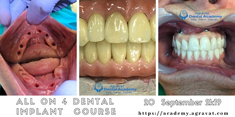 All on 4 Dental Implant Training Course in Ahmedabad Gujarat India tickets