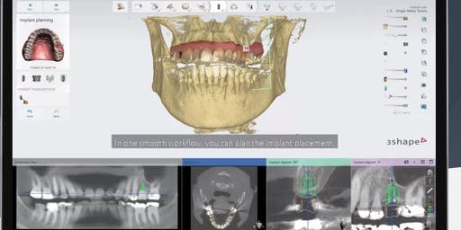 3D Printing and Surgical Guide a Practical and Hands On Course