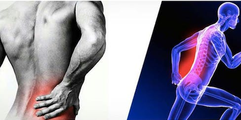 Back Pain during Exercise-Common Misconceptions and Exercise Modifications