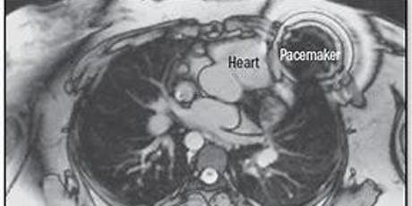 MRI for patients with Cardiac Devices tickets