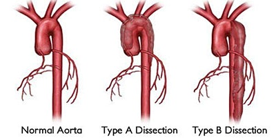Wessex Aortic Dissection Education Day 2020