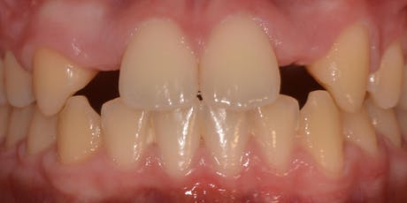 The Orthodontic / Restorative interface tickets