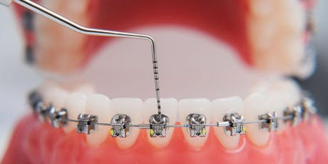 Orthodontic Preparation For Orthognathic Surgery tickets