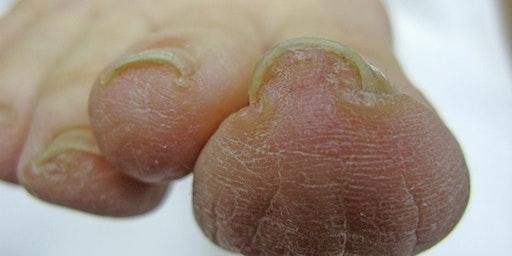 Toe Nail Pathologies and Solutions