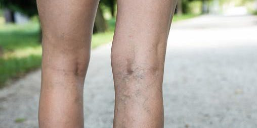 Leg Veins: All You Need to Know