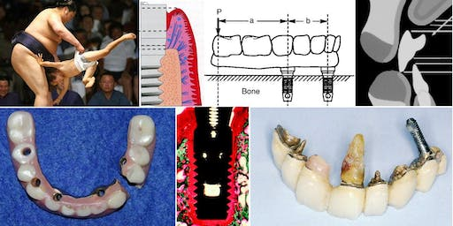 """Lecture: """"Implants and Occlusion"""" by Dr. David Chvartszaid"""