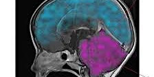 Acquired Brain Injury in Children and Adolescents-The management of children an young people with brain tumours