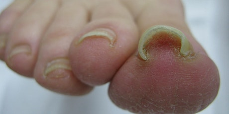 Toe Nail Pathologies and Solutions tickets