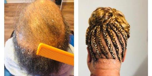 Build A Braid (Alopecia Coverage)