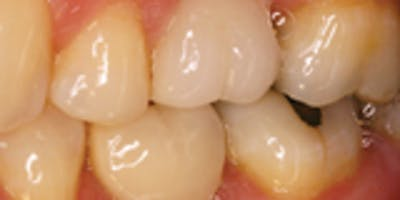 Single Tooth Implant Surgery and Restoration - How to Add Implant Dentistry to your practice.