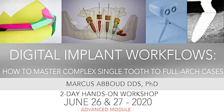 Digital Implant Workflows:   Master Complex Single Tooth to Full-Arch Cases tickets