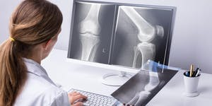 Hip and Knee Replacement: What's New  What's Happening