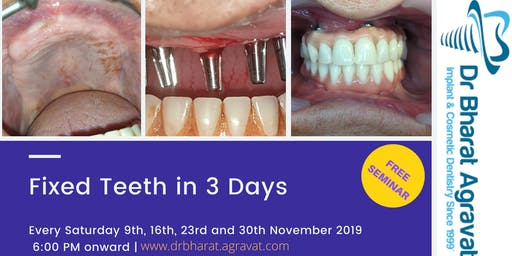 Permanent Fixed New Teeth in 3 Days by Dental Implants in Ahmedabad India