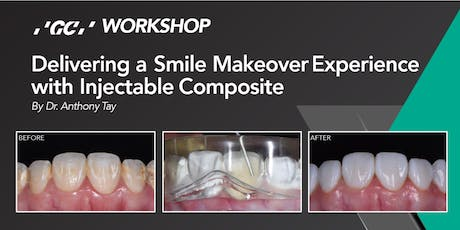 Delivering a Smile Makeover Experience  with Injectable Composite tickets