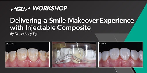 Delivering a Smile Makeover Experience  with Injectable Composite