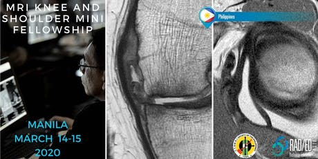 Radiology Conference MANILA PHILIPPINES MRI Knee and Shoulder Mini Fellowship and Workstation Workshop 14th - 15th March 2020: Radiology Education Asia tickets