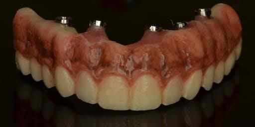 Digital Implant Restorative & Full Arch Workflows