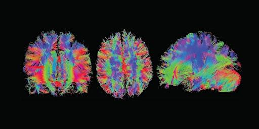Universe of the Brain: Build a Better Brain
