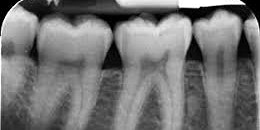 Practical IRMER Update for Dental Hygienists, Therapists & Dental Nurses