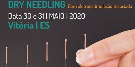 Curso de  Dry Needling com Eletroestimulação associada bilhetes