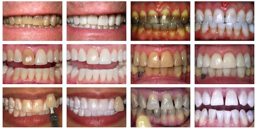 Astonishing Professional Teeth Whitening Right  On Time For The Holidays