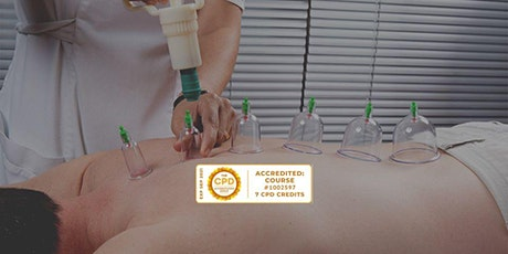 Cupping Therapy CPD course tickets