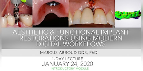 Aesthetic & Functional Implant Restorations Using Modern  Digital Workflows tickets