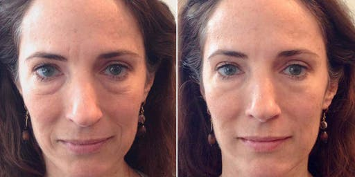 MELT Mini Face Lift, Collagen Workshop and Personal Skin Consultation