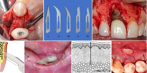 """Lecture: """"Flap design for implant surgery"""" by Dr. David Chvartszaid"""