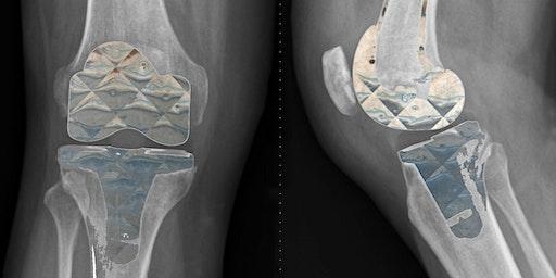 Diamonds: an Implant's Best Friend