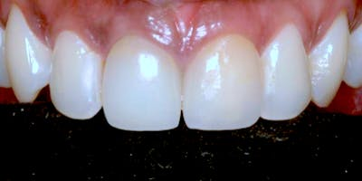 New Course:  Digital Workflow for Esthetic All Ceramic Restorations