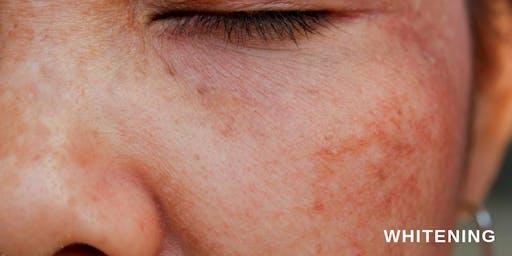 Behandlungen der Pigmentverfärbungen + GENO