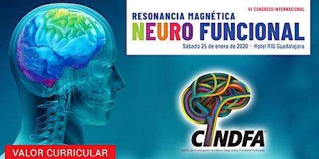 VI Congreso Internacional Resonancia Magnética Neuro Funcional boletos