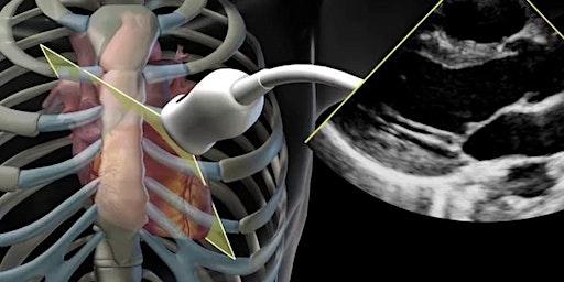RMH-Critical Care Echocardiography Course (TTE) Feb-April 2020