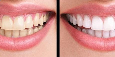 Houston, Tx School of Glamology: Teeth Whitening Certification tickets