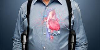 Cardiac Emergencies and LVAD response