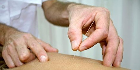Introduction to Dry Needling - CPD tickets