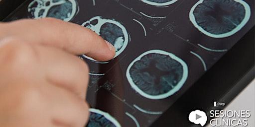 Neurorehabilitación de ictus en fase crónica. Casos clínicos.