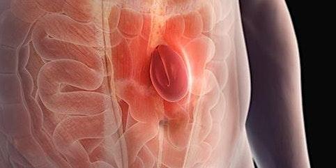 FREE Mini Consultations - Hernias and Gallbladders