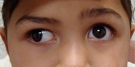Exotropia: a step-by-step guide tickets
