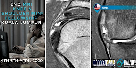 Radiology Conference KUALA LUMPUR MALAYSIA Knee and Shoulder MRI Mini Fellowship and Workstation Workshop 4th - 5th April 2020: Radiology Education Asia tickets