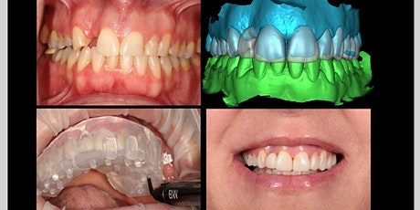 Composite Full Mouth Rehabilitation tickets