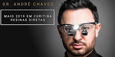 Dr . André Chaves - Facetas em Resinas Composta tickets
