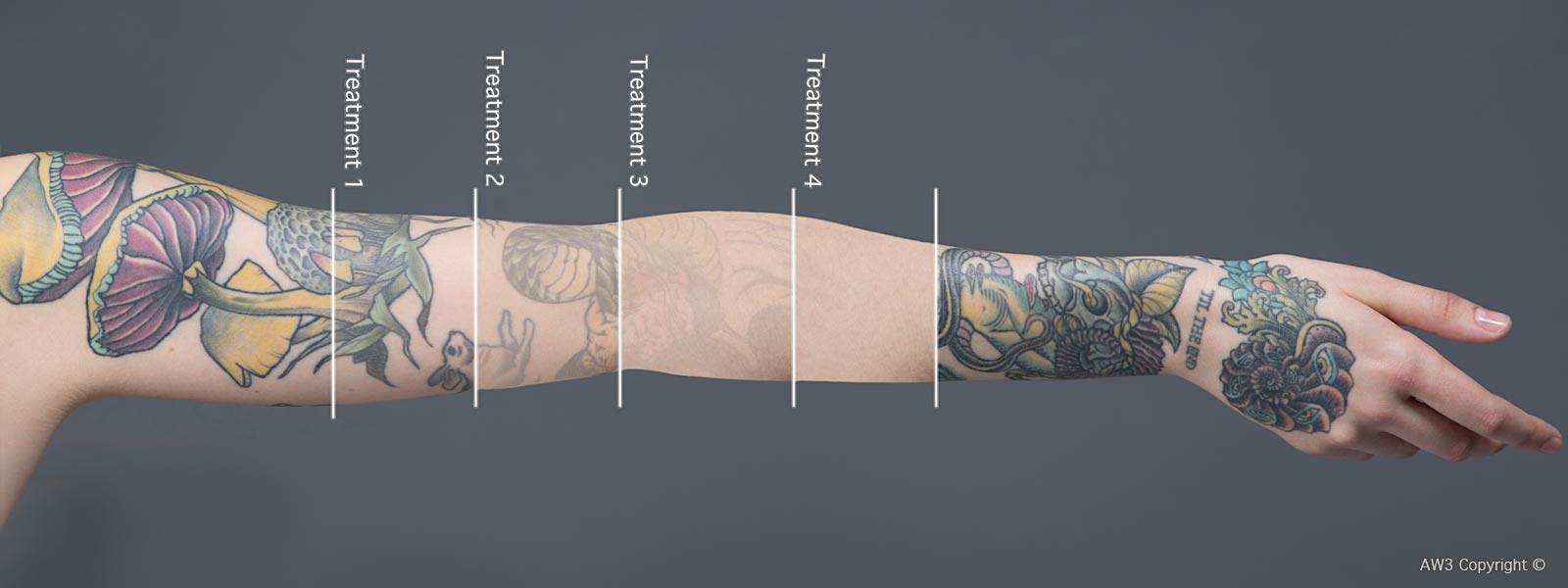 Redink Tattoo Studio Laser Tattoo Removal Free consultation