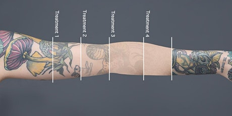 Redink Tattoo Studio Laser Tattoo Removal Free consultation tickets
