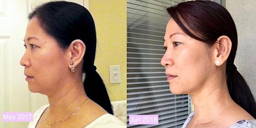 No More Double Chin and Turkey Neck with Face Yoga