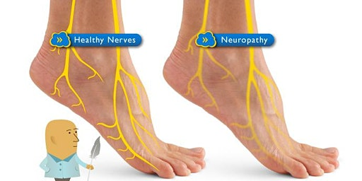 Free Peripheral Neuropathy Workshop!